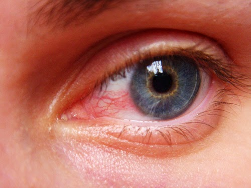 Eyes Problems Connected With Uveitis Disease Herbs
