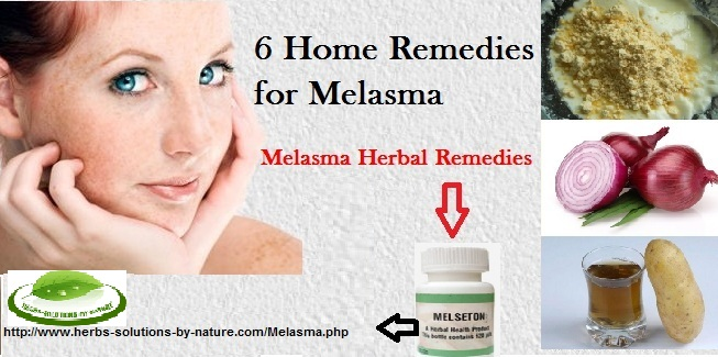 Home-Remedies-for-Melasma