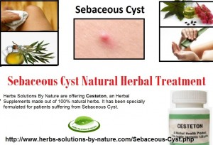 Sebaceous-Cyst-Natural-and-Herbal-Treatment