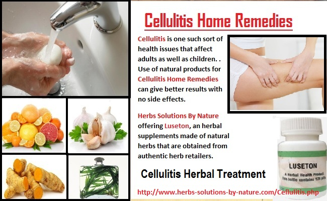 Cellulitis-Home-Remedies