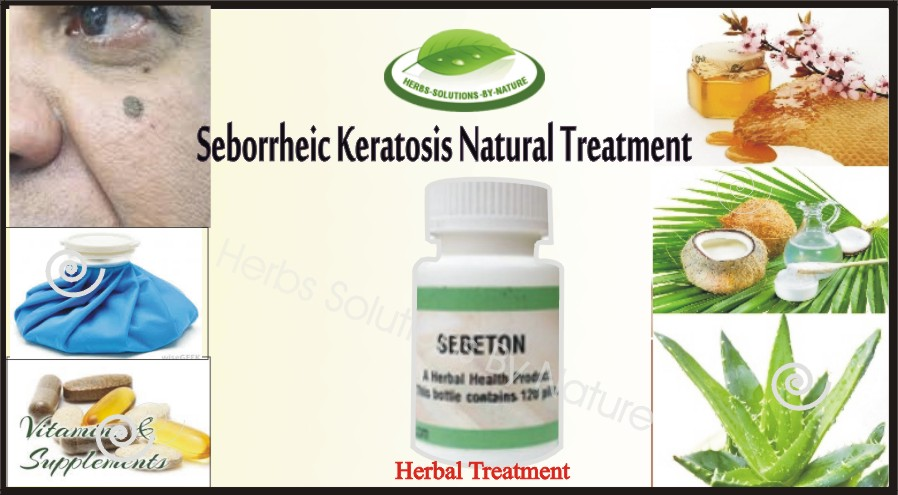 Natural-Treatment-for-Seborrheic-Keratosis