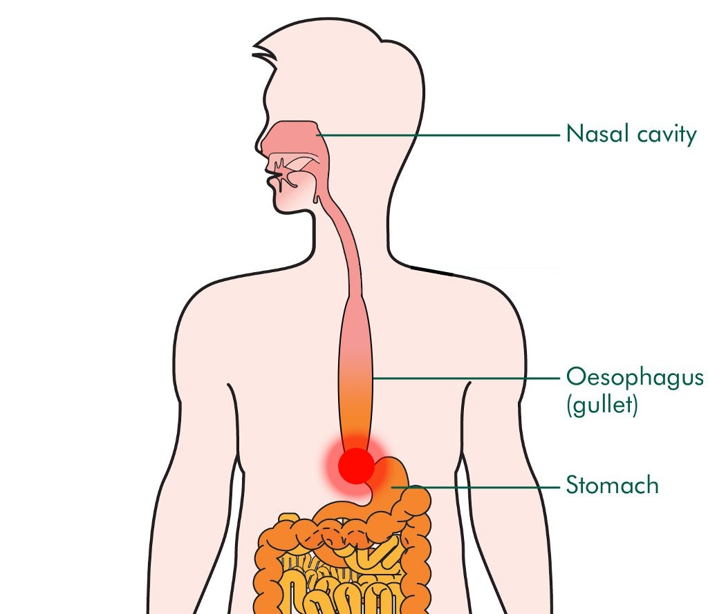 For Achalasia We Should Stick With Conventional Treatment
