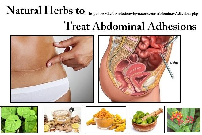 Abdominal-Adhesions