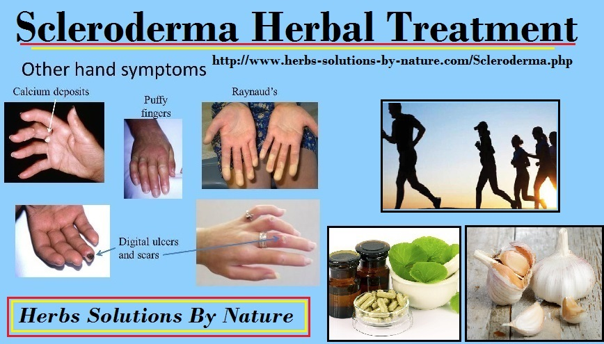 Herbal-Treatment-of-Scleroderma