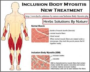 Inclusion Body Myositis