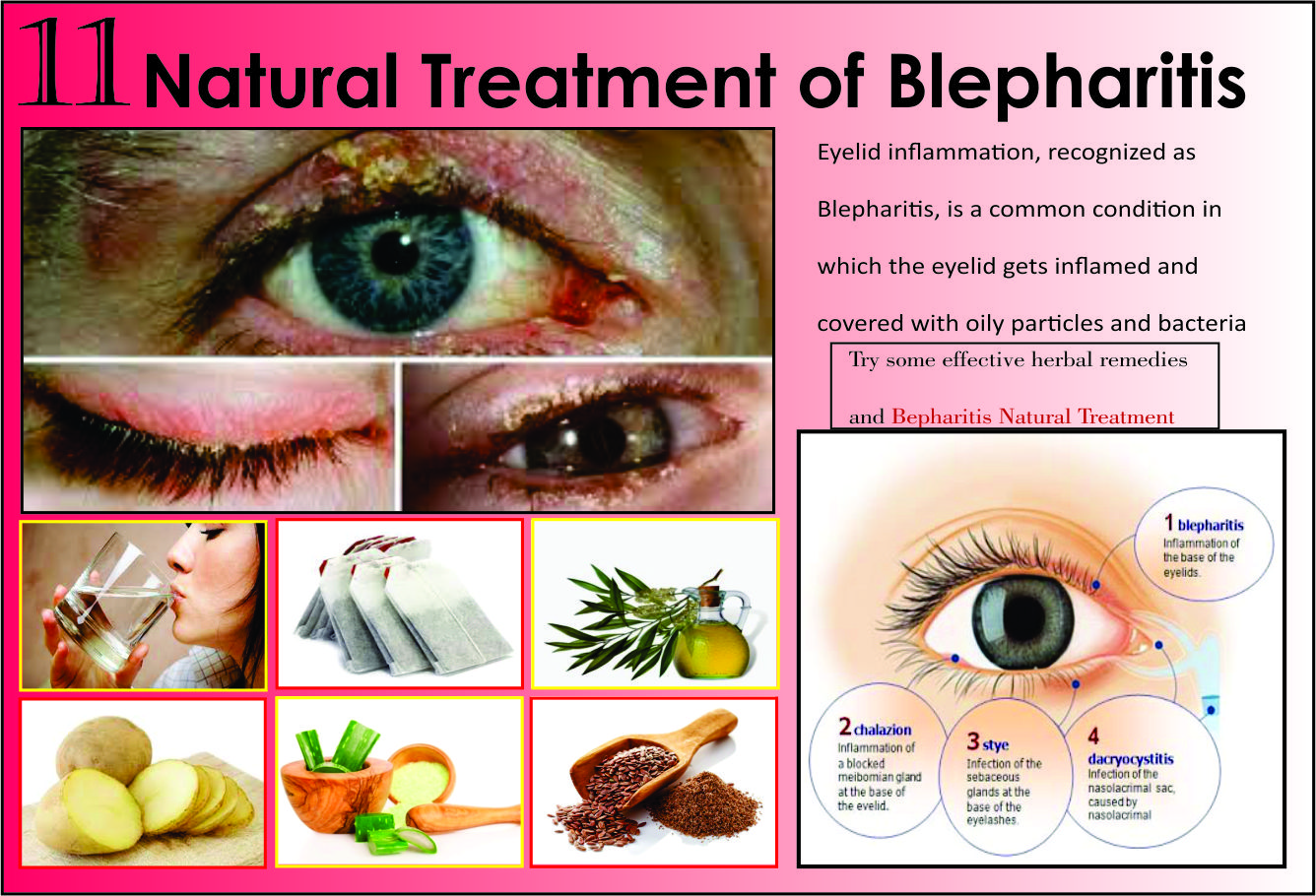 Natural-Treatments-of-Blepharitis