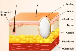 Sebaceous-Cyst