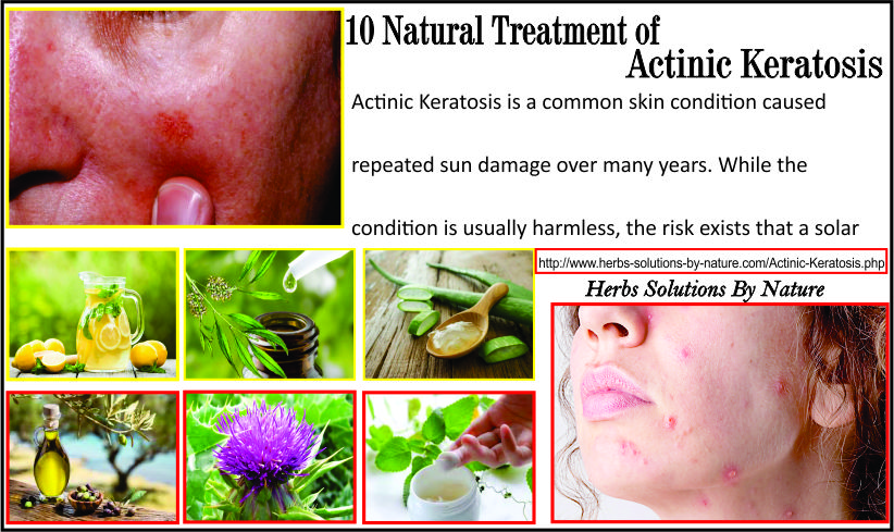 10 Natural Treatment of Actinic Keratosis - Herbs Solutions By Nature