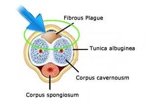Peyronie's-Disease