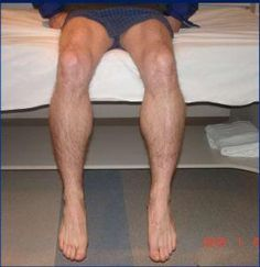 Inclusion-Body-Myositis