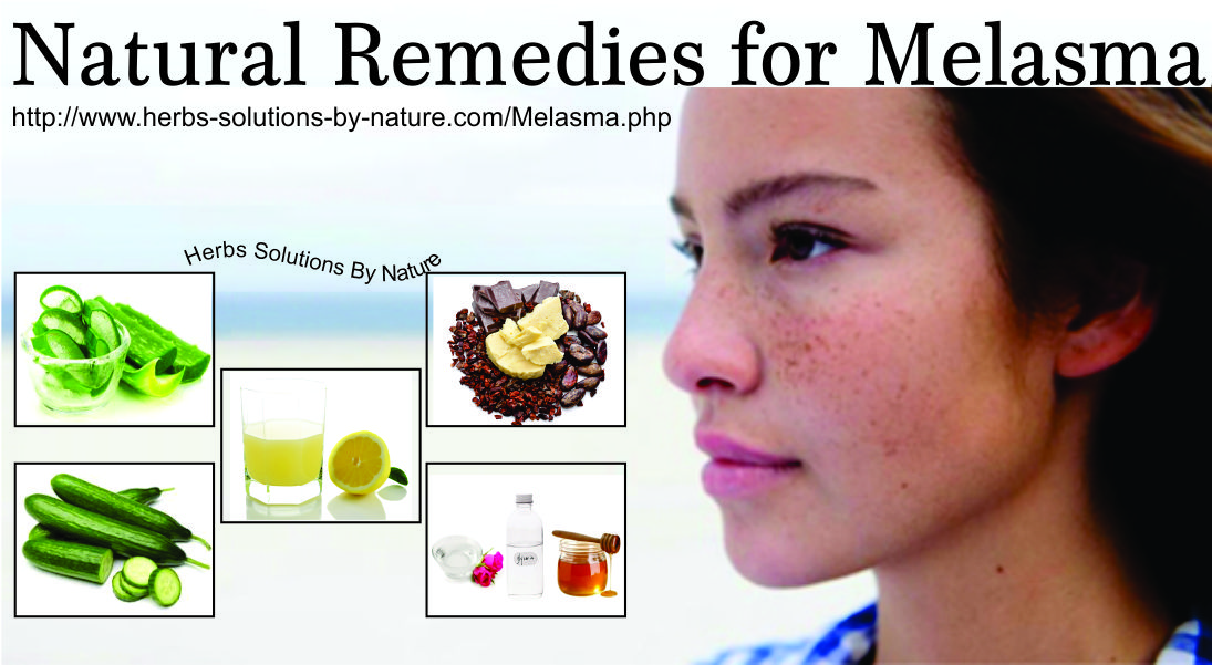 10 natural remedies for melasma that have been proven to work herbs solutions by nature. Black Bedroom Furniture Sets. Home Design Ideas