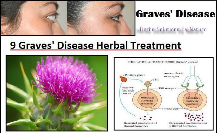 Graves'-Disease-Herbal-Treatment