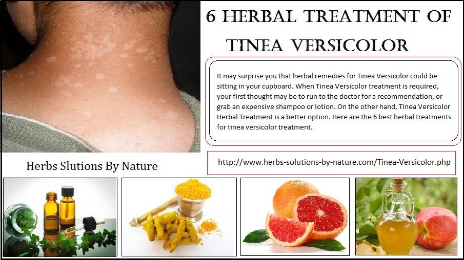 Herbal-Treatment-of-Tinea-Versicolor
