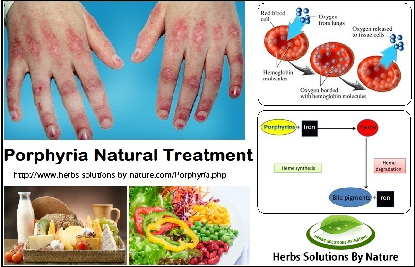 Natural-Treatment-for-Porphyria