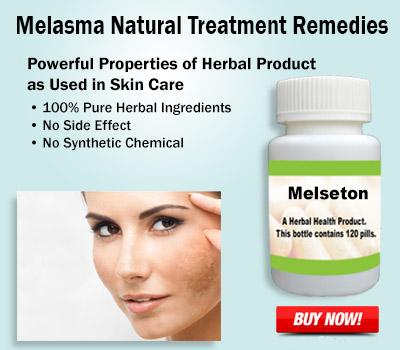 Melasma-Natural-Treatment
