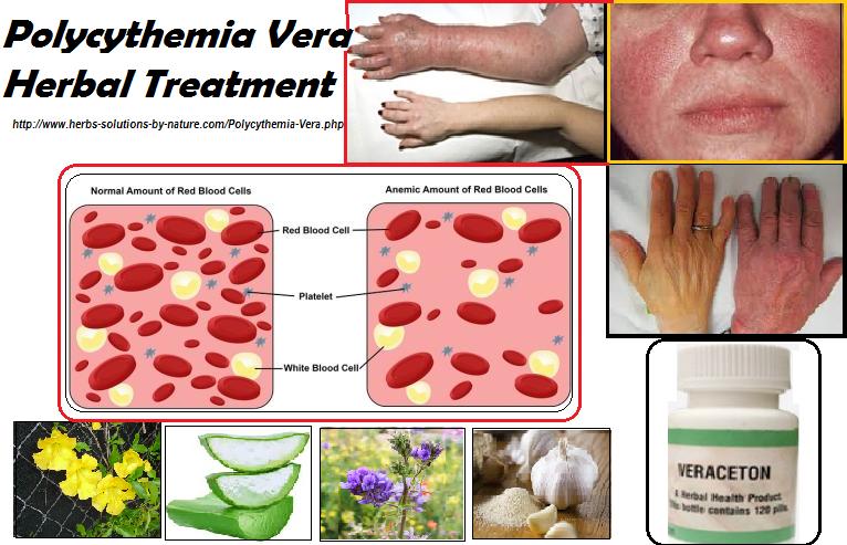 Polycythemia Vera Natural Cure