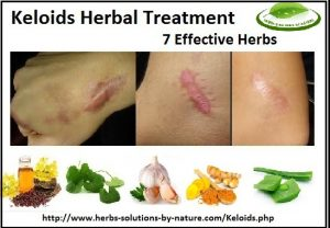 Natural-Treatment-for-Keloids
