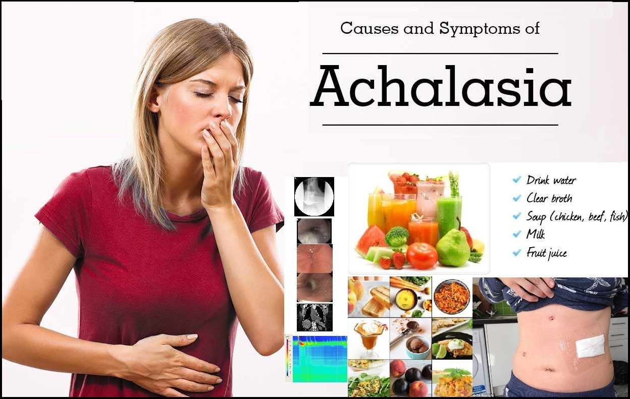 Achalasia-Natural-Treatment