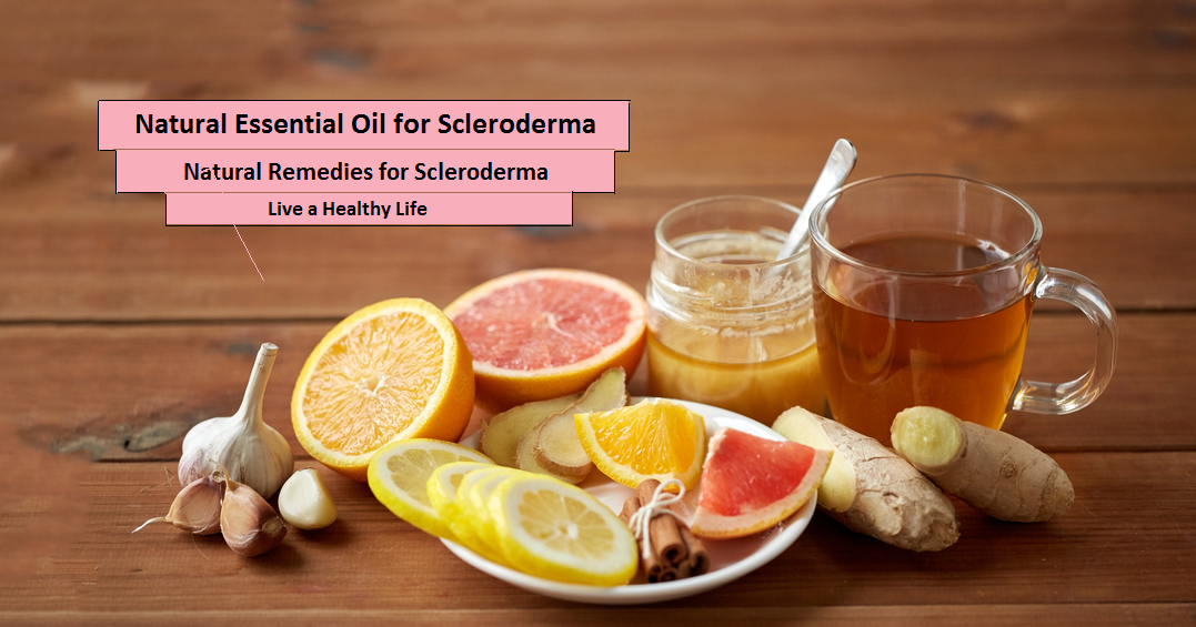 Natural-Remedies-for-Scleroderma