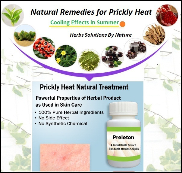 Natural-Treatment-for-Prickly-Heat