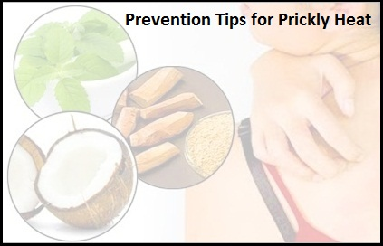 Prevent-Prickly-Heat