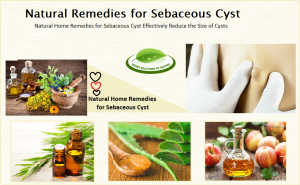 Natural-Treatment-for-Sebaceous-Cyst