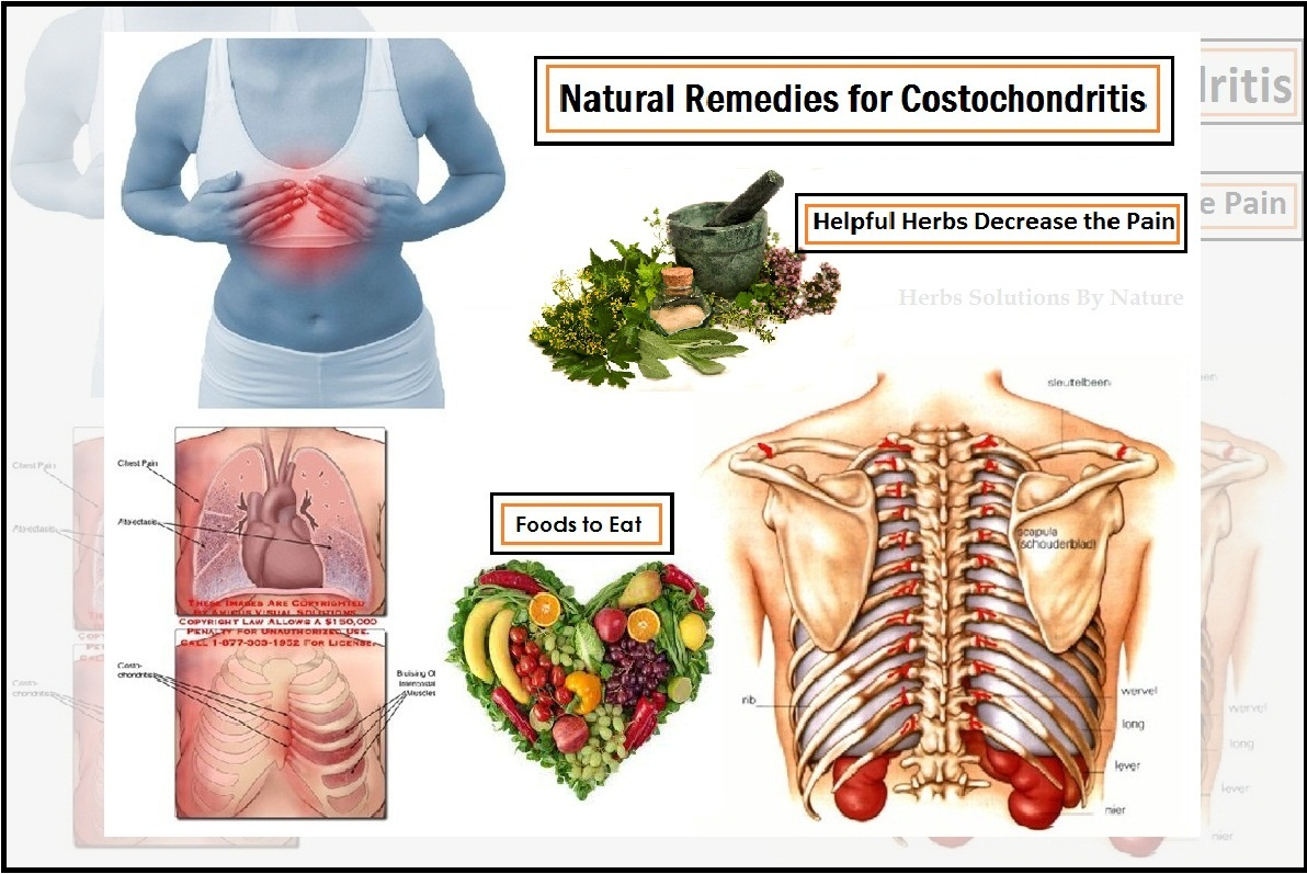 Costochondritis-Treatment-Natural-Remedies