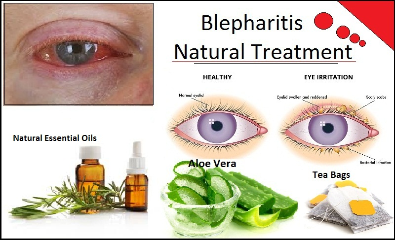 Natural-Remedies-for-Blepharitis