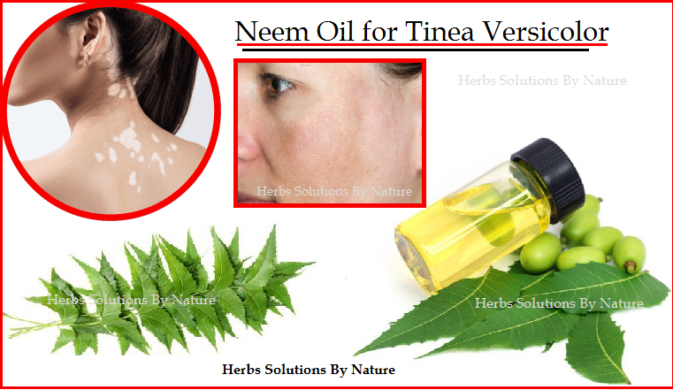 Herbal-Treatment-for-Tinea-Versicolor