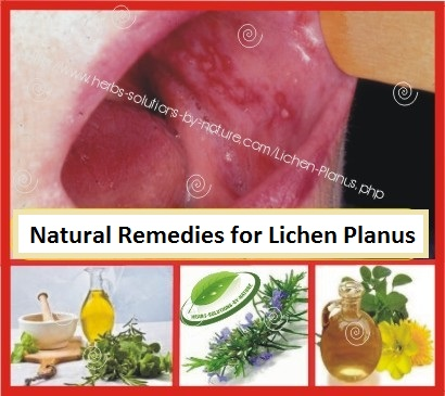 Herbal-Treatment-for-Lichen-Planus