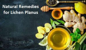 Natural-Remedies-for-Lichen-Planus