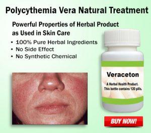 Natural Remedies for Polycythemia Vera