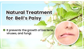 natural-treatment-for-bells-palsy-350x210