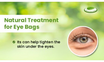 natural-treatment-for-eye-bags-350x210
