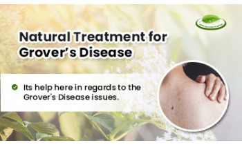 natural-treatment-for-grovers-disease-350x210