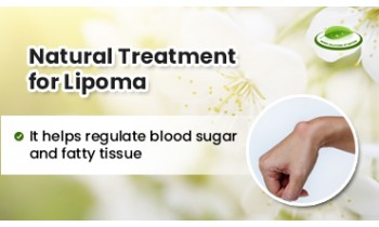 natural-treatment-for-lipoma-350x210