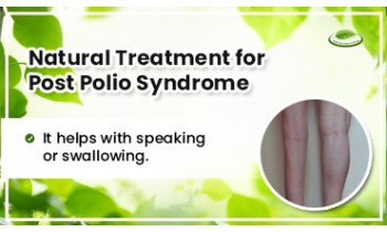 natural-treatment-for-post-polio-syndrome-350x210