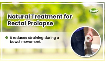 natural-treatment-for-rectal-prolapse-350x210